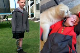 Heartwarming: Boy with prosthetic legs finds best friend in dog born without paw